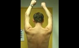 Scapula alata rechts bij anteflexie van de armen, toenemend bij herhalen van de beweging door verminderde duurbelastbaarheid van de m. serratus anterior.