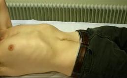 Paradoxale ademhalingsbewegingen (intrekken van de buik bij inspiratie) bij een patiënt met diafragma-uitval ten gevolge van n. phrenicus-betrokkenheid bij NA.