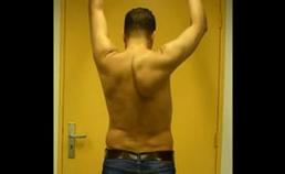 Scapula alata rechts bij anteflexie van de armen veroorzaakt door zwakte van de m. serratus anterior.