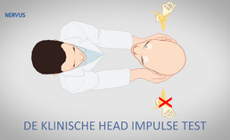 De klinische head impulse test
