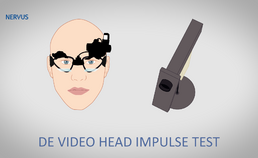 De video head impulse test