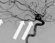 Carotisendarteriëctomie bij een patiënt met een occipitaal herseninfarct