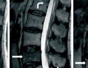 Beeldvorming bij spondylodiscitis