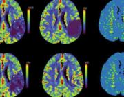 Rol van CT-perfusie in de diagnostiek van het herseninfarct en in de selectie van patiënten voor endovasculaire behandeling