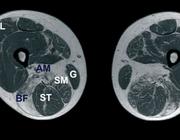 Een patiënt met een verhoogde activiteit van het creatinekinase in het serum