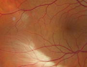 Het retinocorticale visuele systeem