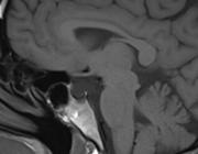 Hypofysedisfunctie na (licht) traumatisch hersenletsel
