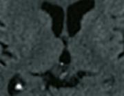 Late intracraniële bloedingen na licht traumatisch hoofd/hersenletsel