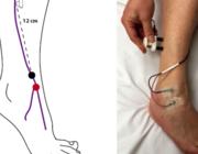 EMG en beeldvorming bij mononeuropathieën