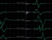Intraoperatieve neurofysiologische monitoring van het myelum