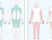 Myositis: een spectrumziekte