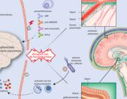 Neuropsychiatrische systemische lupus erythematodes