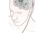 Behandeling van motorische complicaties bij de ziekte van Parkinson