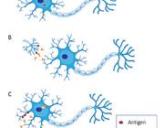 Paraneoplastische neurologische syndromen van het centraal zenuwstelsel