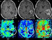 Aankleuring na behandeling van een GBM: tumorrecidief of therapie-effect?
