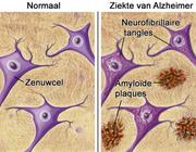 De ziekte van Alzheimer, achtergrond en diagnostiek