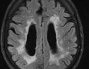 Vasculaire cognitieve beperking en vasculaire dementie