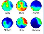 EEG bij geheugenstoornissen