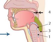 Slikstoornissen bij neurologische aandoeningen