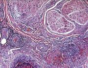 Axonale polyneuropathie