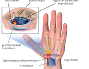 Carpaletunnelsyndroom