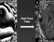 Susceptibility-weighted imaging (SWI) bij verschillende (vasculaire) aandoeningen
