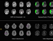 DAWN-trial – is imaging belangrijker dan duur van symptomen bij IAT?