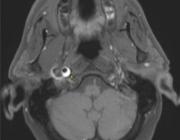 Een zeldzame presentatie van (sub)acute lagere hersenzenuwuitval