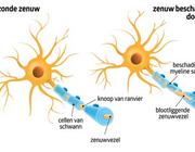 Farmacotherapie van multipele sclerose