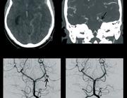Radiologische kenmerken van het reversibele cerebrale vasoconstrictiesyndroom (RCVS)