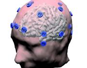 EEG bij verdenking epilepsie
