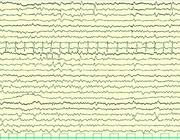 Een febriele status epilepticus, lang niet altijd onschuldig