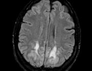 Neurologische complicaties van elektrolytstoornissen