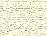 Neurologische complicaties op de IC