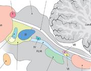 Oculomotoriekstoornissen vanuit hersenstam en hersenzenuwen