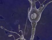 De behandeling van epilepsie bij patiënten met een glioom
