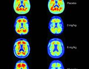 Aducanumab verlaagt de hoeveelheid Aβ-plaques bij de ziekte van Alzheimer