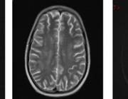 Toxicologie en de hersenen