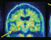 Traumatisch hoofd/hersenletsel als risicofactor voor een neurodegeneratieve aandoening: traumatische encefalopathie